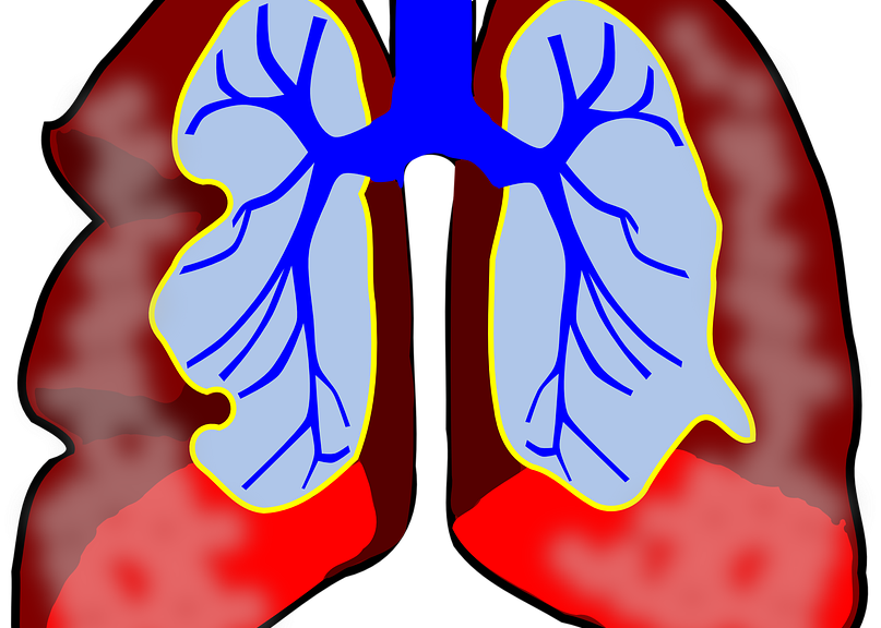 colorful diagram of the lungs